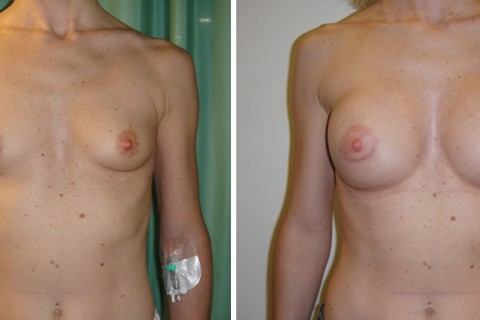 Breast Augmentation A – Case 4 A
