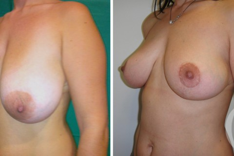 Breast lift – Case 5