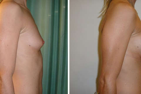 Breast Augmentation A – Case 4 B