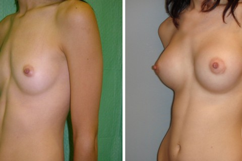 Breast Augmentation R – Case 4 B