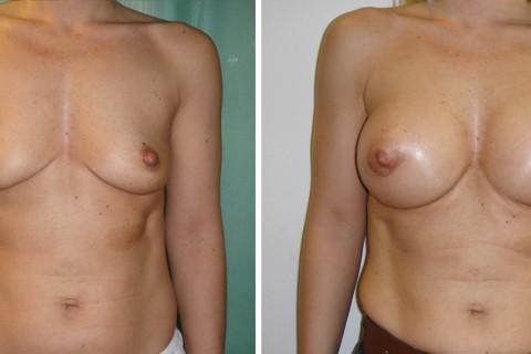 Breast Augmentation A – Case 5