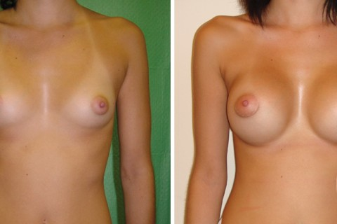 Breast Augmentation R – Case 5 A