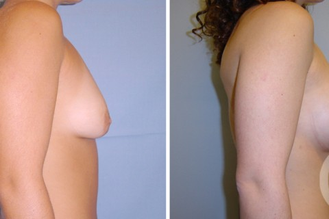 Tuberous breast — Case 5 B