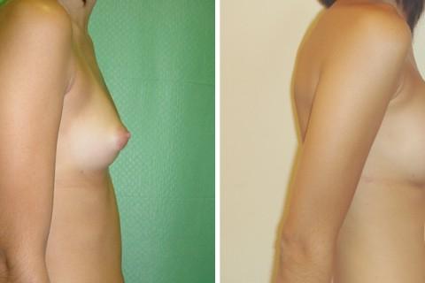 Breast Augmentation R – Case 5-B