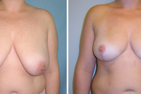 Breast Reduction – Case 7