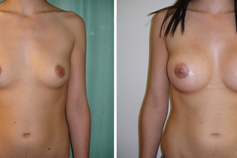 Breast Augmentation A – Case 6 A