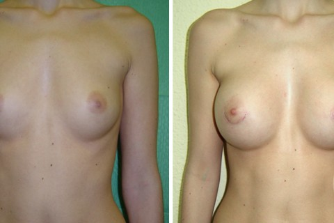 Breast Augmentation R – Case 6 A