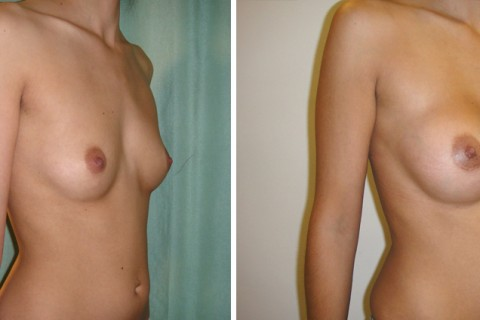 Breast Augmentation A – Case 6 B