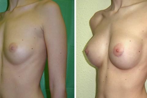 Breast Augmentation R – Case 6 B