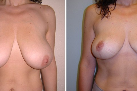 Breast Reduction – Case 8