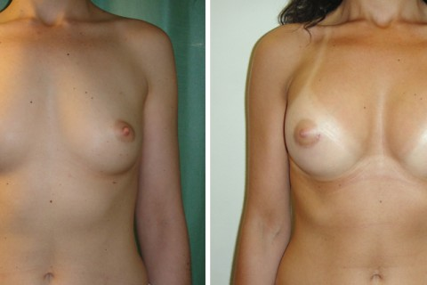 Breast Augmentation A – Case 7