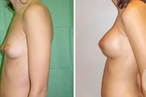 Tuberous breast – Case 8 B