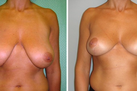 Breast Reduction – Case 9