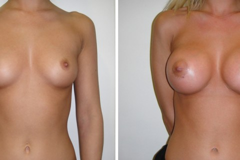 Breast Augmentation A – Case 8 A