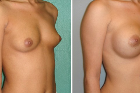 Breast Augmentation R – Case 8-B