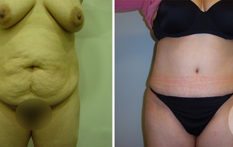 Abdominoplasty – Case 1 A