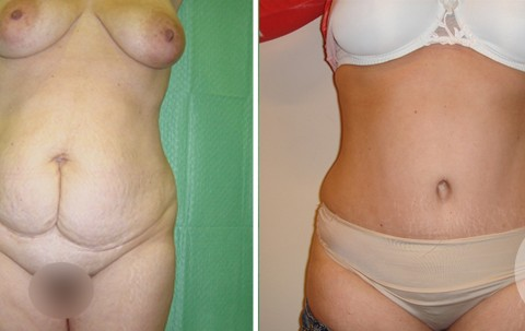 Abdominoplasty – Case 3