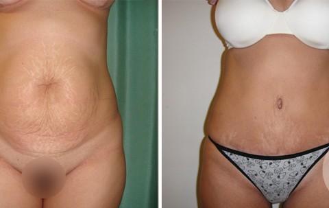 Abdominoplasty — Case 10
