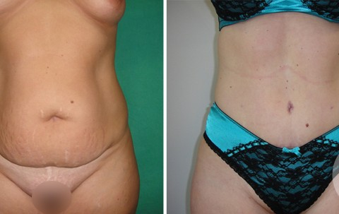 Abdominoplasty – Case 12