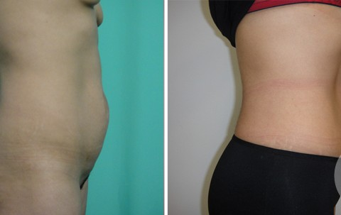 Abdominoplasty – Case 14 B