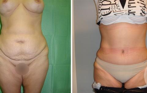 Abdominoplasty – Case 4