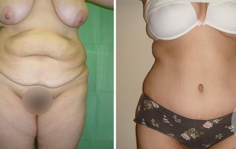 Abdominoplasty – Case 6 A