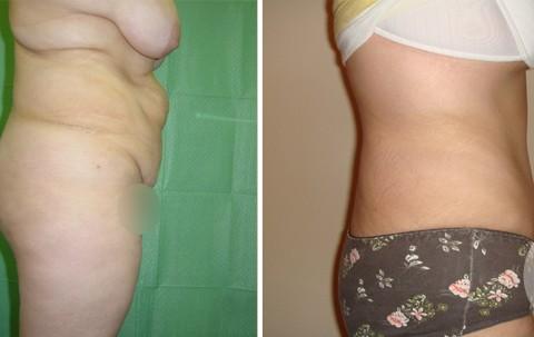 Abdominoplasty — Case 6 B