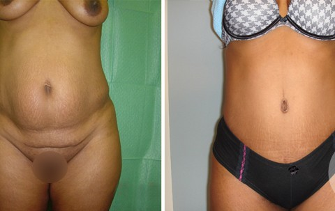 Abdominoplasty – Case 7