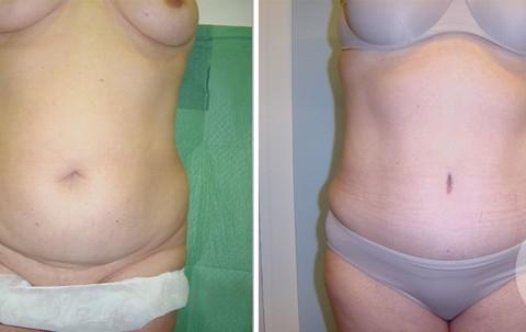 Abdominoplasty — Case 8 A