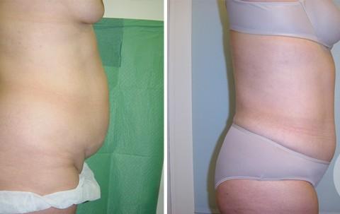 Abdominoplasty — Case 8 B