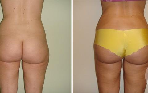 Body Liposuction – Case 14