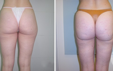 Body Liposuction – Case 15