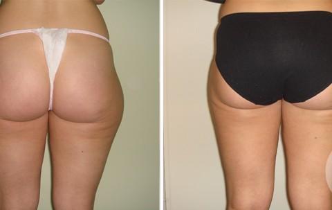 Body Liposuction — Case 7