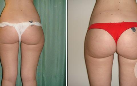 Body Liposuction – Case 16