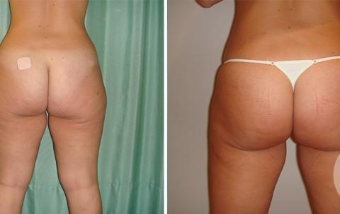 Body Liposuction — Case 6