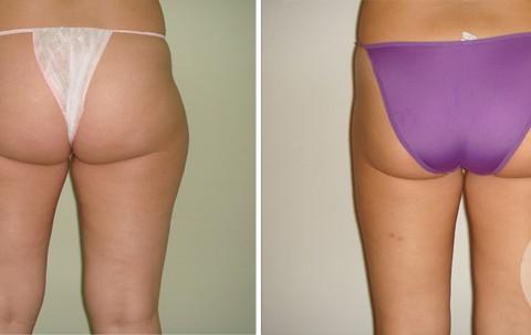 Body Liposuction — Case 5