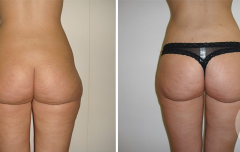 Body Liposuction – Case 4