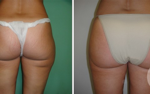 Body Liposuction – Case 3