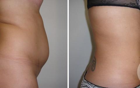 Body Liposuction — Case 21