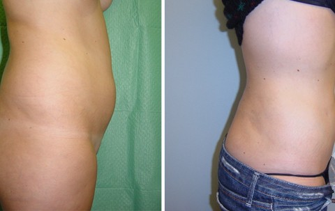Body Liposuction – Case 23