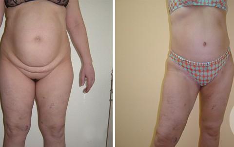 Body Liposuction – Case 1 A