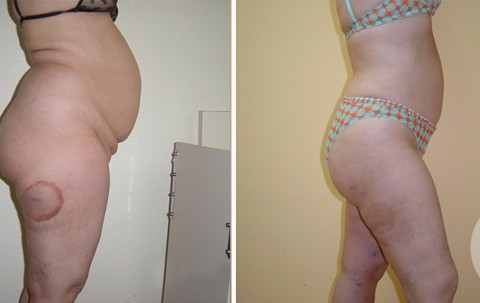 Body Liposuction – Case 1 B