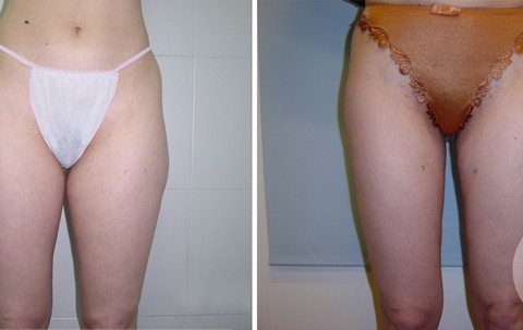 Body Liposuction – Case 2