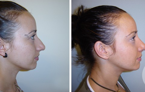 Rhinoplasty — Case 1