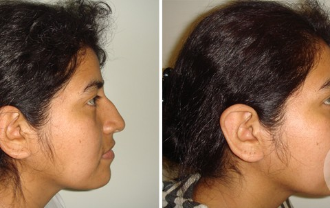 Rhinoplasty – Case 14