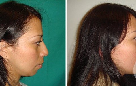 Rhinoplasty – Case 16