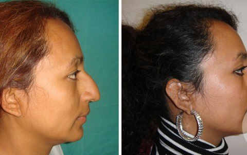 Rhinoplasty – Case 17