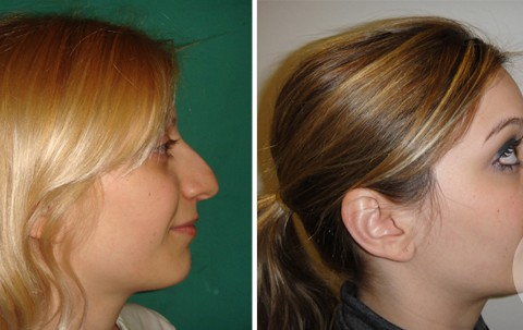 Rhinoplasty – Case 18