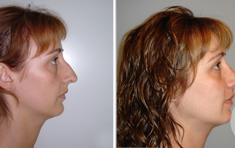 Rhinoplasty — Case 3