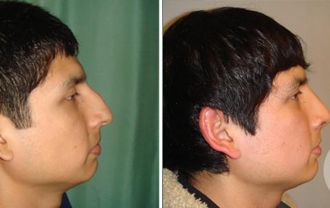 Rhinoplasty – Case 5